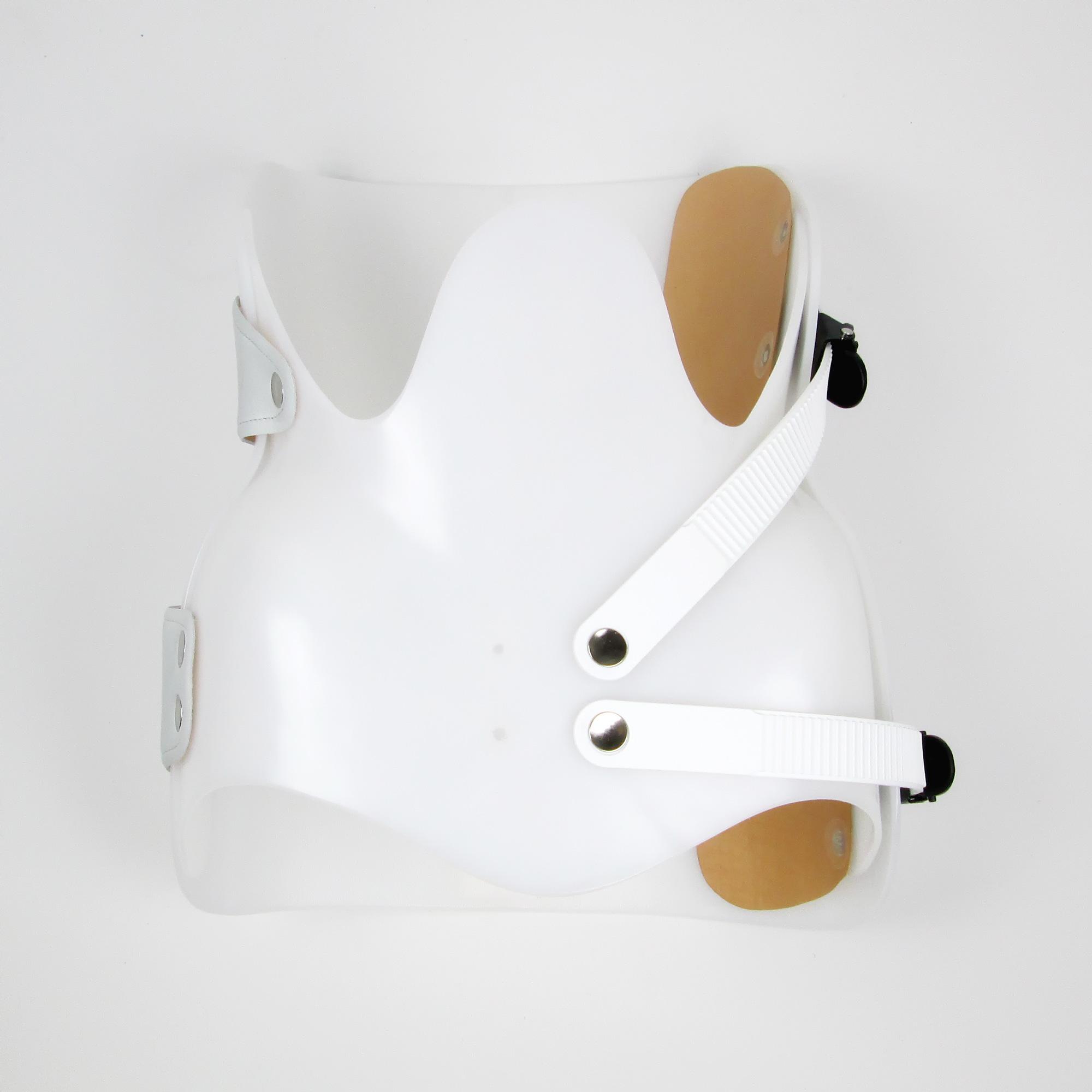 frakturen der wirbels ule einfach operiert. Black Bedroom Furniture Sets. Home Design Ideas