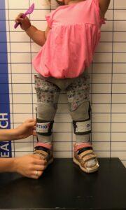 Blount-Krankheit: Orthesen bei der Anprobe in der Schweiz