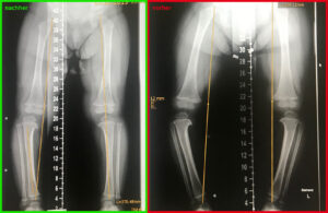 Röntgenbilder Tibia vara im Zeitraum von 6 Monaten