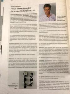 Interview mit Burkhard Püttmann zur Orthesen-Versorgung der Tibia vara blount