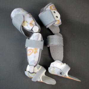 Oberschenkel-Hülsenapparate in Carbonfasertechnik zur Versorgung einer Tibia vara blount